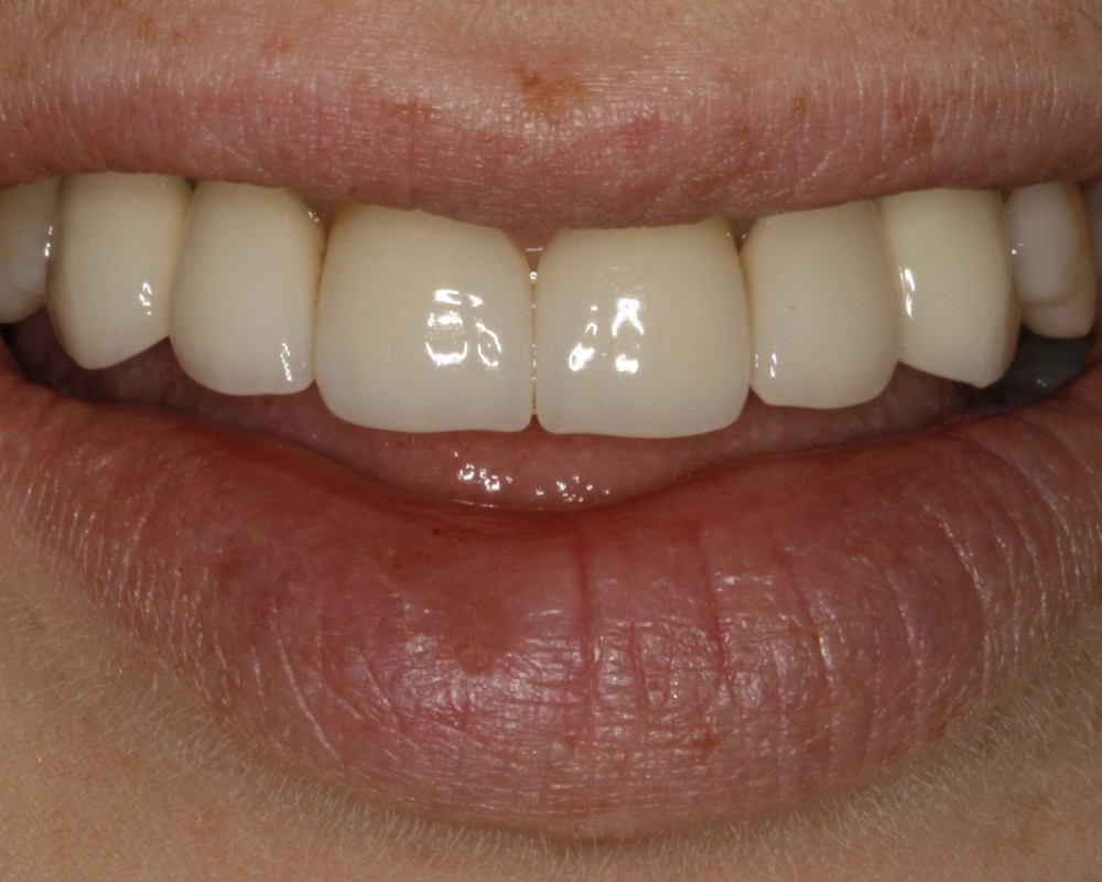 After Dental Implants Patient 4