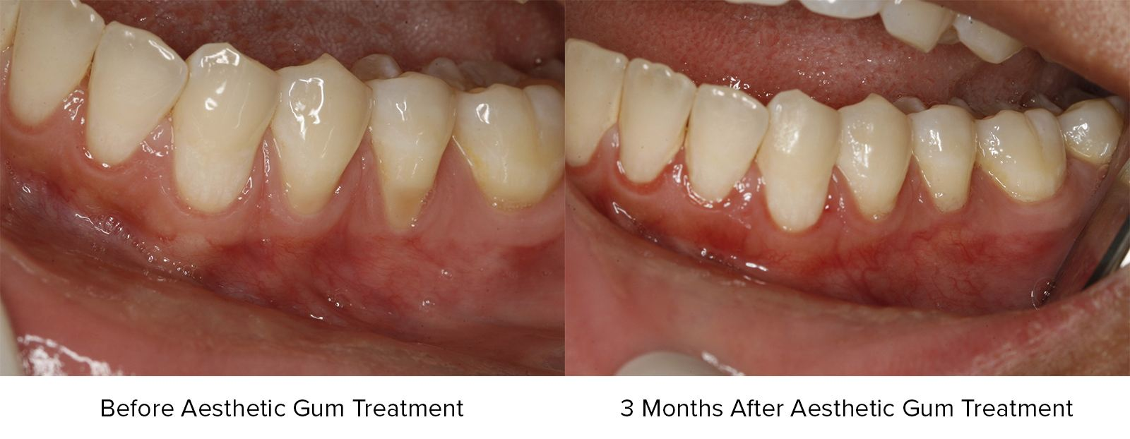 Before Aesthetic Gum Treatment and 3 Months After Aesthetic Gum Treatment Photos