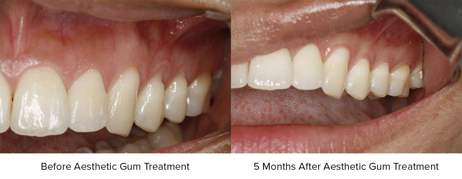 Before Aesthetic Gum Treatment and 5 Months After Aesthetic Gum Treatment Photos